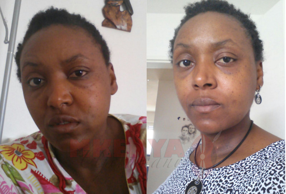 Phyllis Wangui Lichtenwalter after attack